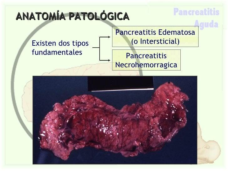ANATOMÍA PATOLÓGICA Existen dos tipos fundamentales Pancreatitis Edematosa (o Intersticial) Pancreatitis Necrohemorragica