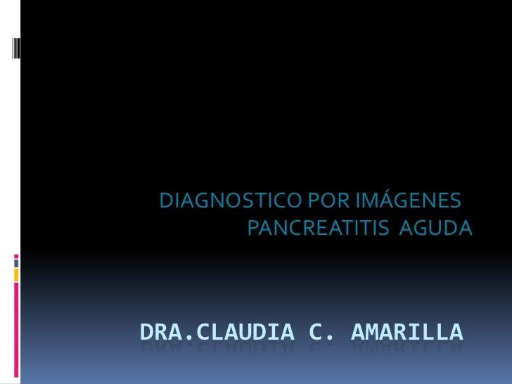 DIAGNOSTICO POR IMÁGENES       PANCREATITIS AGUDADRA.CLAUDIA C. AMARILLA