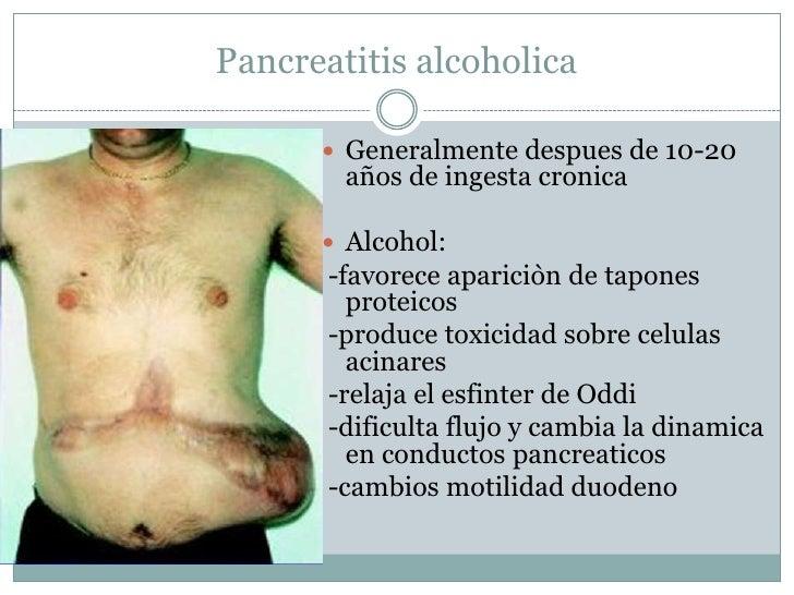 Samara la codificación del alcohol la dirección y el precio