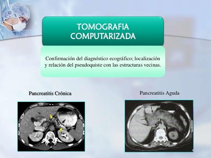Confirmación del diagnóstico ecográfico; localización       y relación del pseudoquiste con las estructuras vecinas.Pancre...