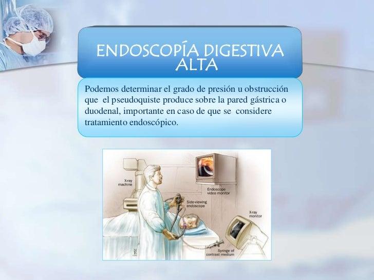 ENDOSCOPÍA DIGESTIVA         ALTAPodemos determinar el grado de presión u obstrucciónque el pseudoquiste produce sobre la ...