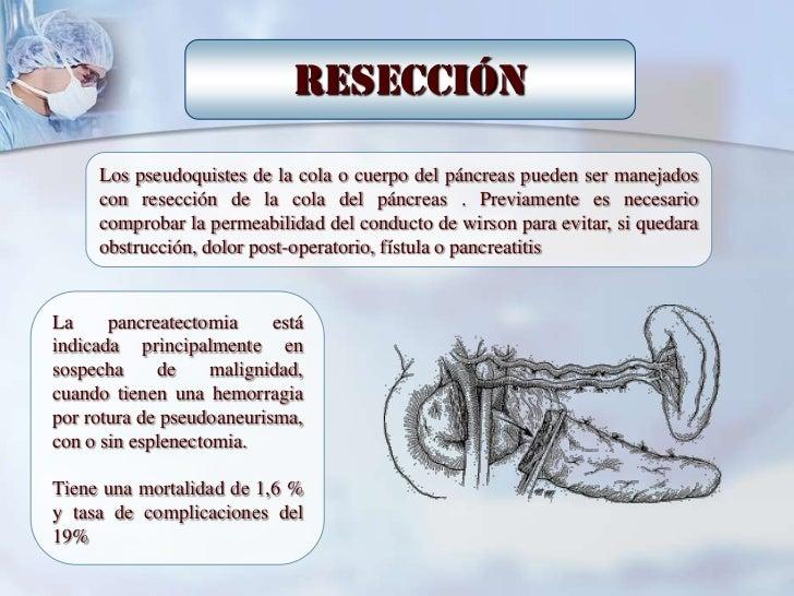 Drenaje Externo        Los pseudoquistes de la cola del páncreas pueden ser manejados con        resección de la cola del ...