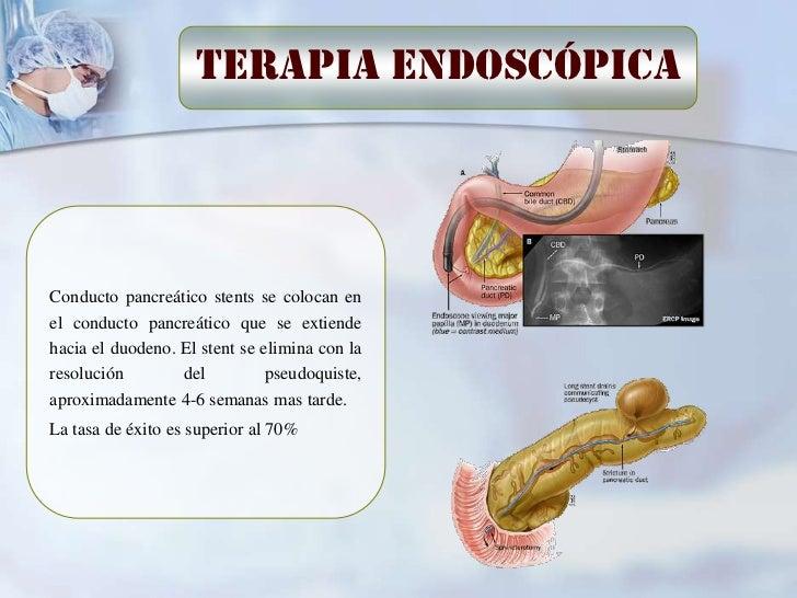 cistogastroanas-tomosisLos quistes adherentes a la pared posterior del estomago son drenadosadecuadamente con una cistogas...