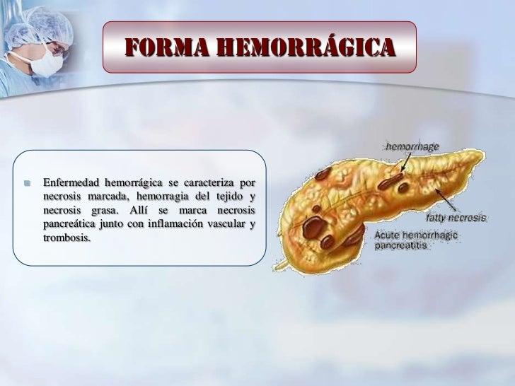 Forma hemorrágica   Enfermedad hemorrágica se caracteriza por    necrosis marcada, hemorragia del tejido y    necrosis gr...