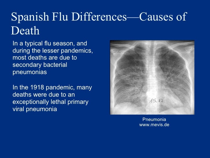 Spanish Flu Differences —Causes of Death <ul><li>In a typical flu season, and during the lesser pandemics, most deaths are...