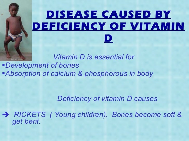 diseases caused by deficiency of VITAMINS & MINERALS (Science)