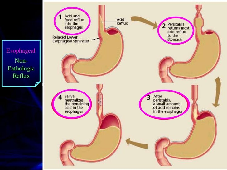 Esophagus                              Stomach                                  Gastric Folds  Lower Esophageal  Sphincter...