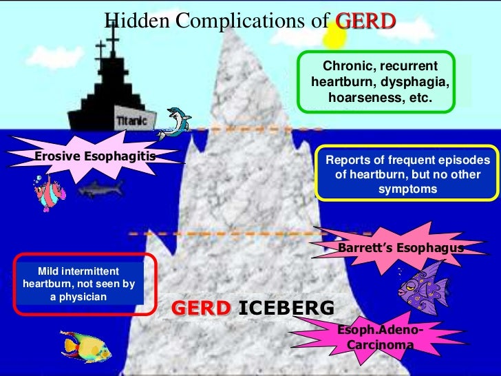 The Pyramid of Diseases        Associated with GERD                                          Extra Esophagial0%           ...