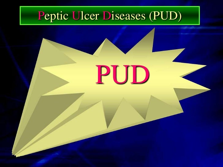 What Is A PUD   PUD is a Term Used to Refer to : Ulcer of Esophagus. Ulcer of Stomach. Ulcer of Duodenum.                 ...