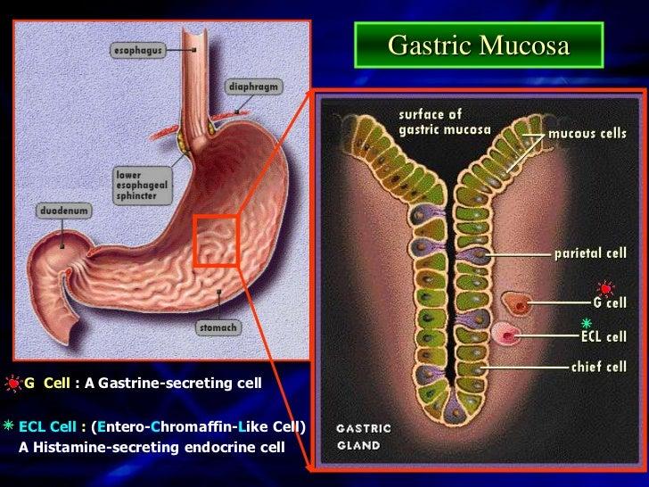 Peptic UlcerEsophageal Ulcer              Gastric Ulcer             Duodenal Ulcer                                     Eso...