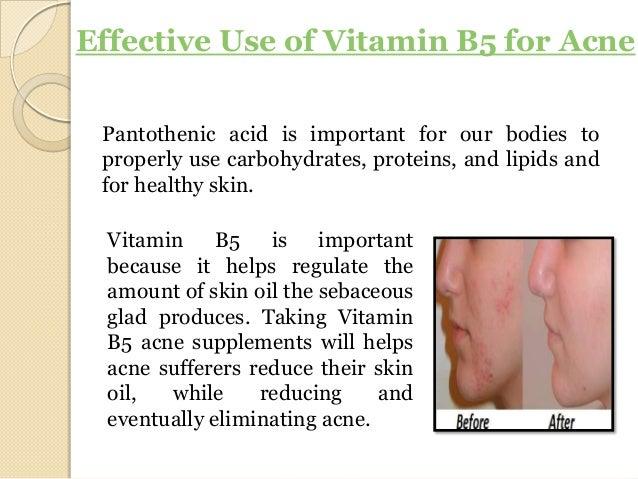 Pantothenic Acid For Acne Treatment