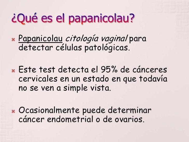 exame para detectar aneurisma cerebral