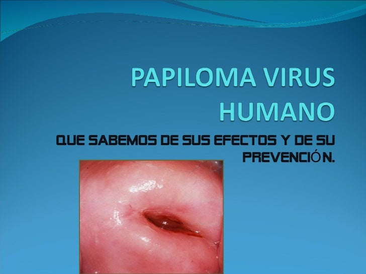 QUE SABEMOS DE SUS EFECTOS Y DE SU                      PREVENCIÓ N.