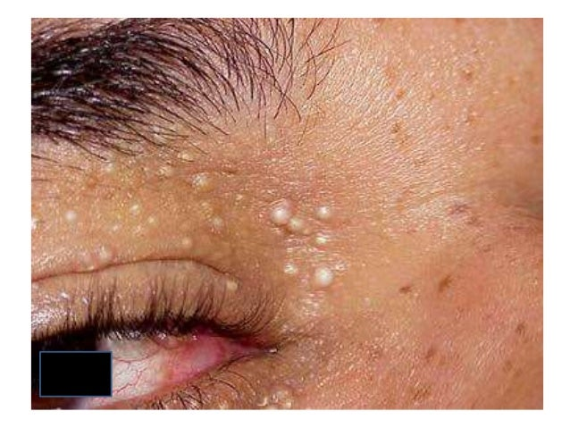differentials of papules on face