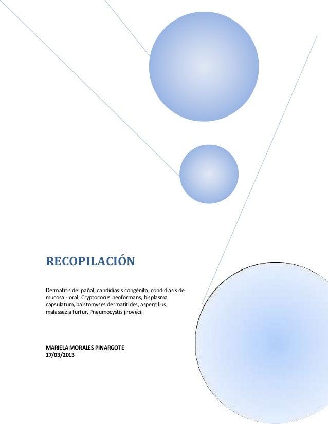 RECOPILACIÓNDermatitis del pañal, candidiasis congénita, condidiasis demucosa.- oral, Cryptococus neoformans, hisplasmacap...