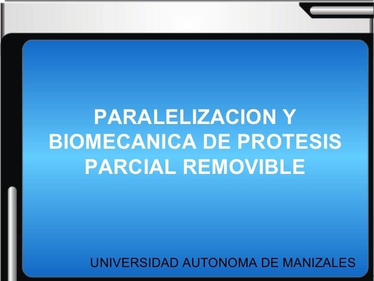 PARALELIZACION Y BIOMECANICA DE PROTESIS PARCIAL REMOVIBLE UNIVERSIDAD AUTONOMA DE MANIZALES