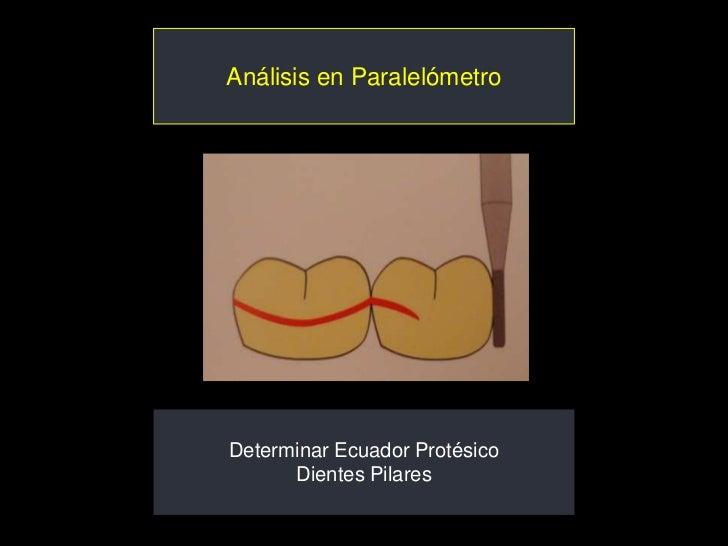 Análisis en ParalelómetroDeterminar Ecuador Protésico      Dientes Pilares