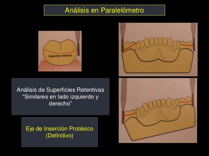 """Análisis en ParalelómetroAnálisis de Superficies Retentivas  """"Similares en lado izquierdo y             derecho""""   Eje de ..."""