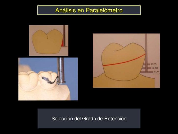 Análisis en ParalelómetroSelección del Grado de Retención