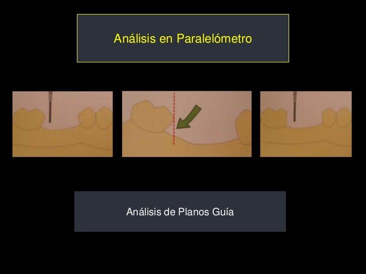Análisis en Paralelómetro  Análisis de Planos Guía