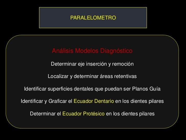 PARALELOMETRO              Análisis Modelos Diagnóstico             Determinar eje inserción y remoción            Localiz...