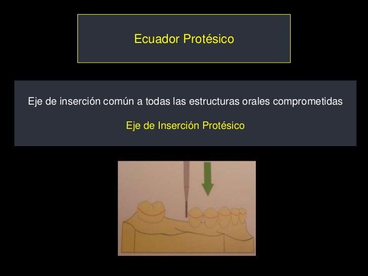 Ecuador ProtésicoEje de inserción común a todas las estructuras orales comprometidas                    Eje de Inserción P...
