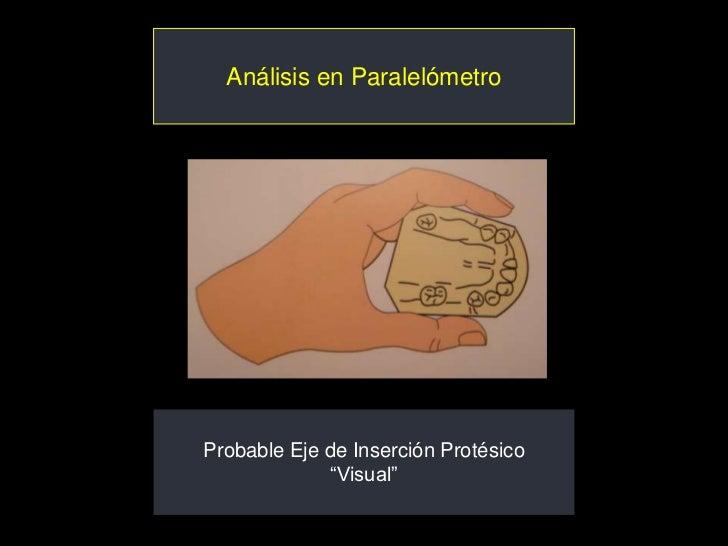 """Análisis en ParalelómetroProbable Eje de Inserción Protésico             """"Visual"""""""