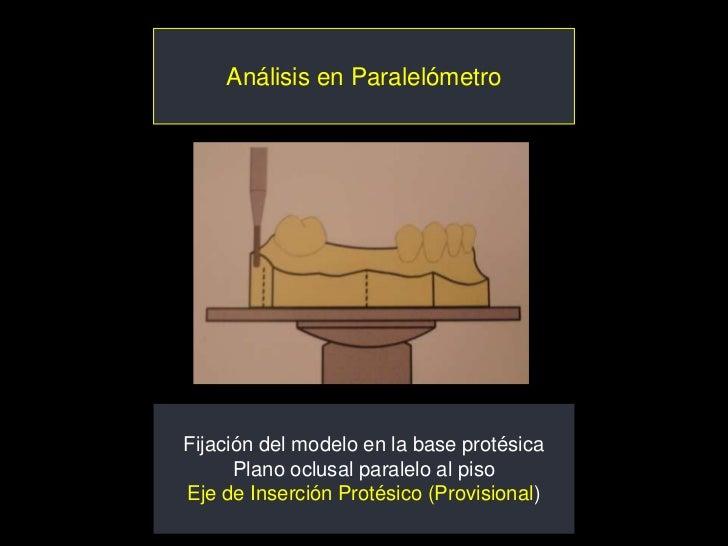 Análisis en ParalelómetroFijación del modelo en la base protésica      Plano oclusal paralelo al pisoEje de Inserción Prot...