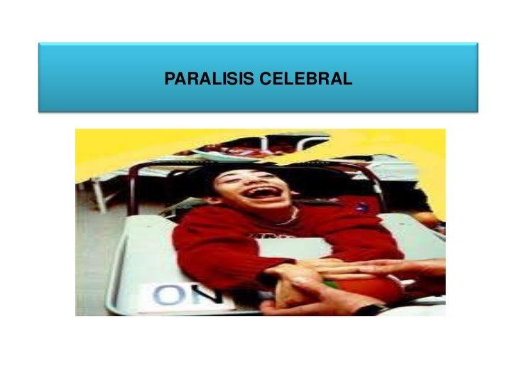 PARALISIS CELEBRAL