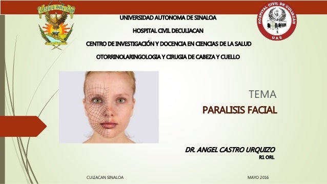 for facial paralisis jpg 422x640