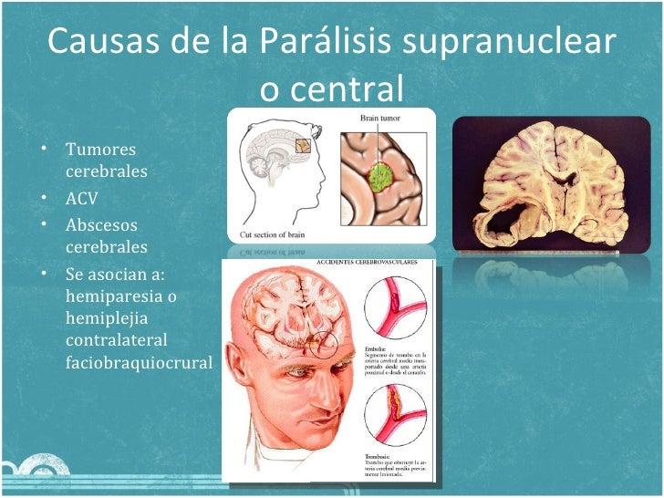 causas de paralisis facial