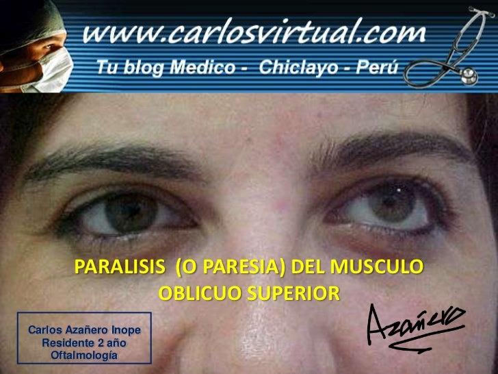 PARALISIS  (O PARESIA) DEL MUSCULO  OBLICUO SUPERIOR<br />Carlos Azañero Inope<br />Residente 2 año<br />Oftalmología<br />