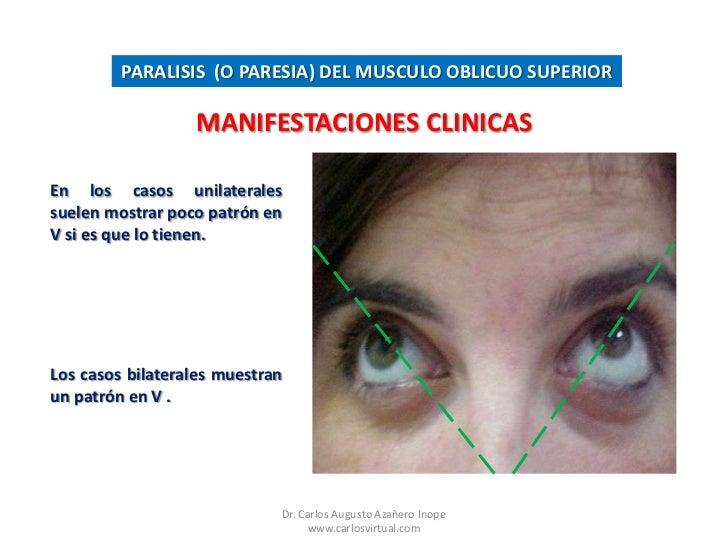 Paralisis o paresia del musculo oblicuo superior