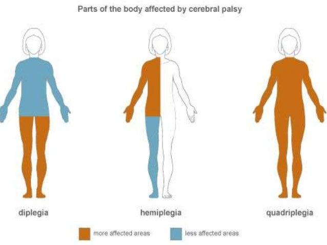 Hemiplegia• Este paralizia care afectează o jumatate (stângasau dreapta)a corpului• Hemiplegia poate fi :o spasmodicăo fla...