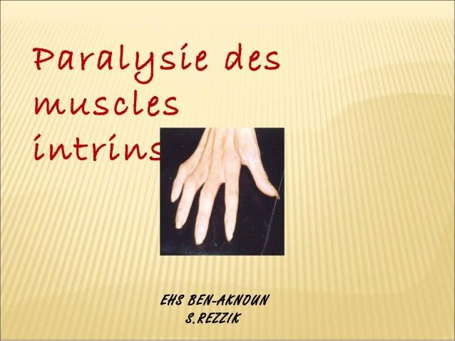 Paralysie des  muscles  intrinsèques  EHS BEN-AKNOUN  S.REZZIK