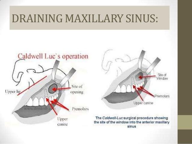 Paranasal sinuses ct anatomy