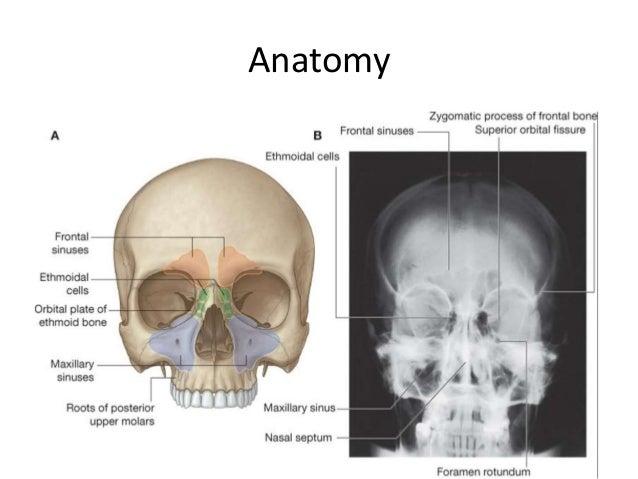 Paranasal Sinuses Carcinoma