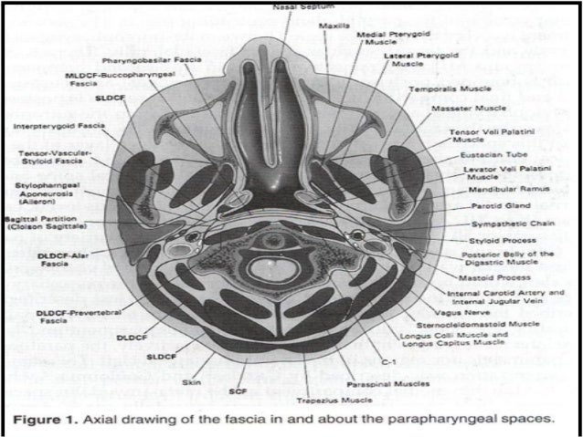 parapharyngeal space tumours