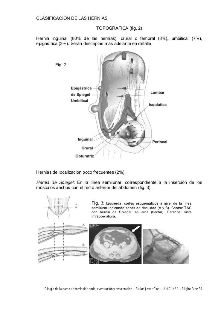 Cirugía de la pared abdominal: Hernia, eventración y evisceración