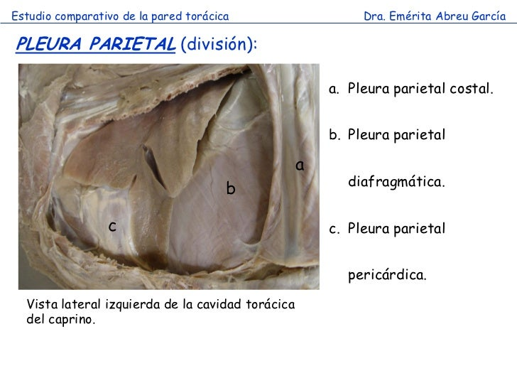 Estudio comparativo de la pared torácica                    Dra. Emérita Abreu GarcíaPLEURA PARIETAL (división):          ...