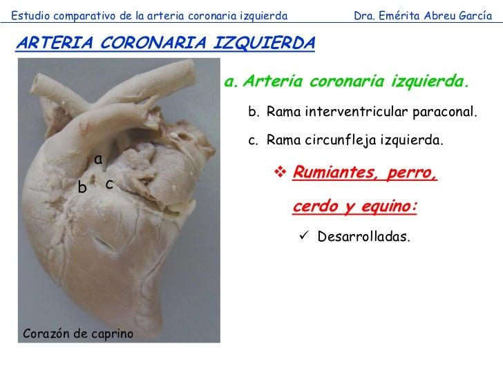 Estudio comparativo de la arteria coronaria izquierda          Dra. Emérita Abreu GarcíaARTERIA CORONARIA IZQUIERDA       ...