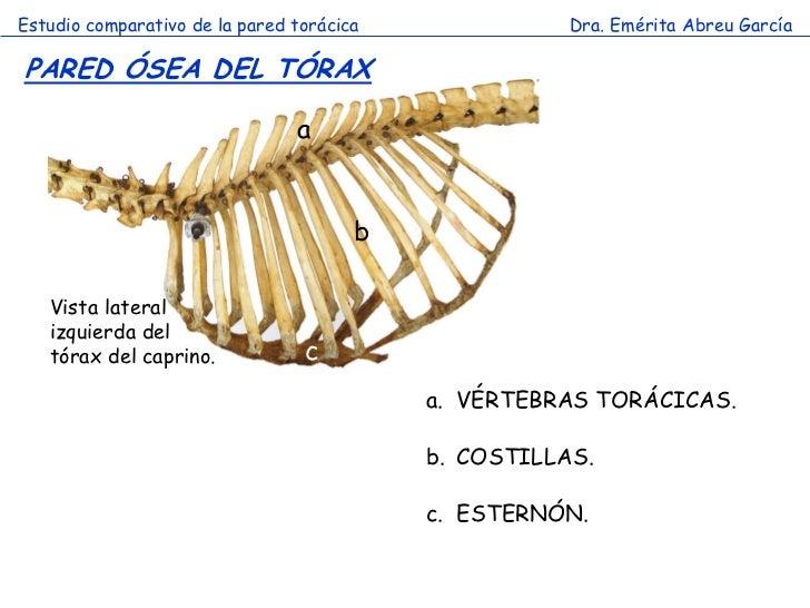 Estudio comparativo de la pared torácica              Dra. Emérita Abreu GarcíaPARED ÓSEA DEL TÓRAX                       ...