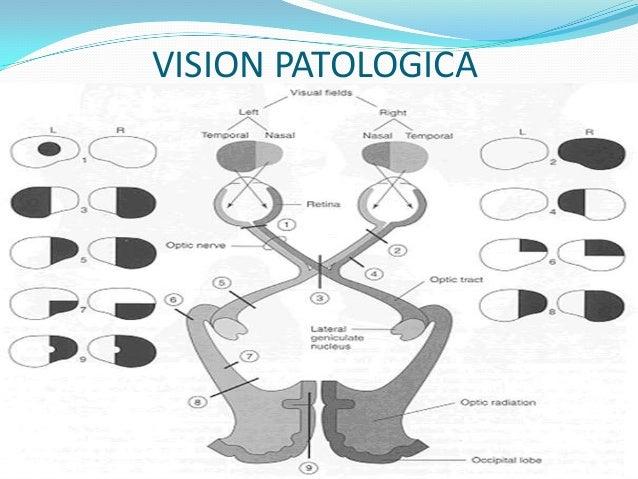Movimiento ocular (III, IV, VI par craneal) Exploración  Estos 3 nervios se exploran al mismo tiempo, porque en su conjun...