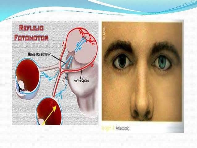 5to. PAR (NERVIO TRIGEMINO)  El nervio trigémino es el nervio craneal más grande y contiene fibras motoras y sensitivas. ...