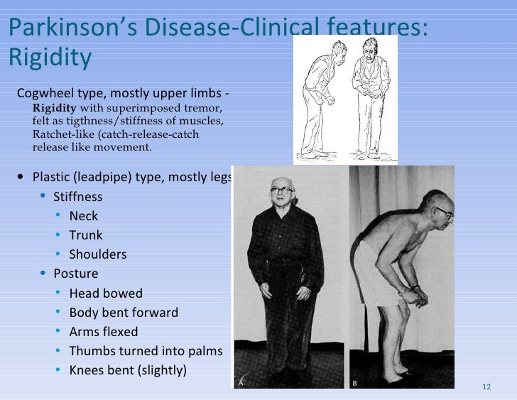 Parkinson's Disease- Clinical features:  Rigidity  <ul><li>Cogwheel type, mostly upper limbs - Rigidity  with superimposed...
