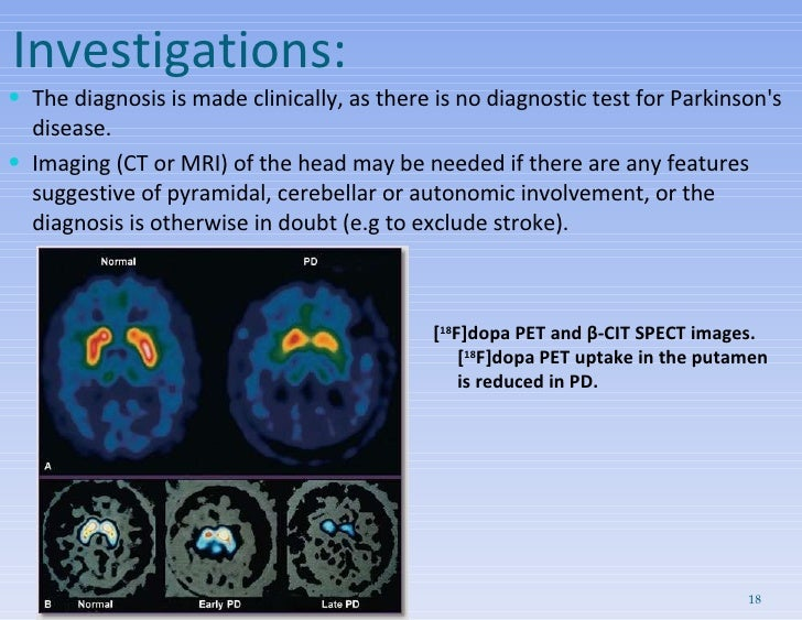 Investigations: <ul><li>The diagnosis is made clinically, as there is no diagnostic test for Parkinson's disease.  </li></...