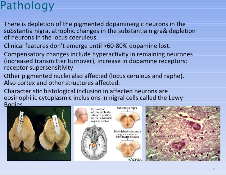 Pathology <ul><ul><li>There is depletion of the pigmented dopaminergic neurons in the substantia nigra, atrophic changes i...