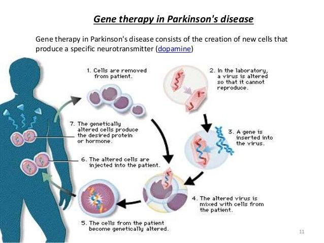 Advances In Management Of Parkinson S Disease