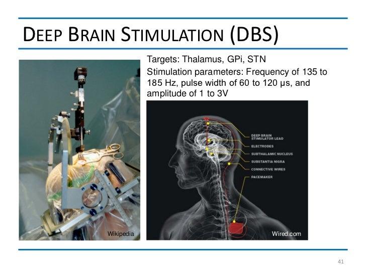 DEEP BRAIN STIMULATION (DBS)                     Targets: Thalamus, GPi, STN                     Stimulation parameters: F...