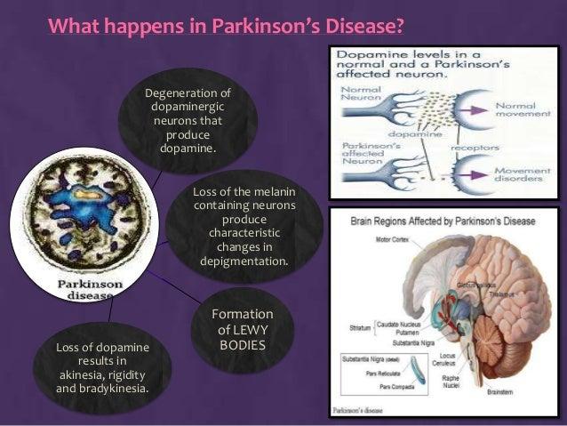 parkinsons answers parkinsons disease - 638×479